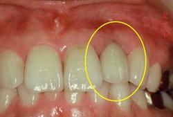 歯根破折3.JPGのサムネール画像